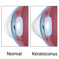 Illustration showing difference between normal cornea and keratoconus-affected cornea