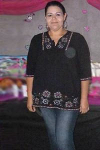 Woman after gastric sleeve surgery