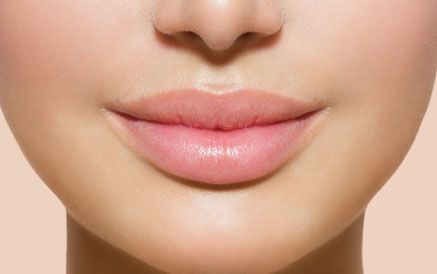 A close-up of a woman's lips following lip augmentation
