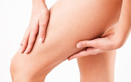 Woman's legs after sclerotherapy for spider vein treatment