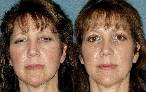 Regain lost vision with eyelid surgery