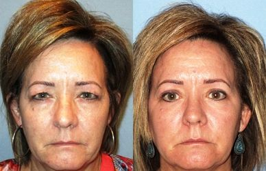 Tammy Before and After Eyelid Surgery