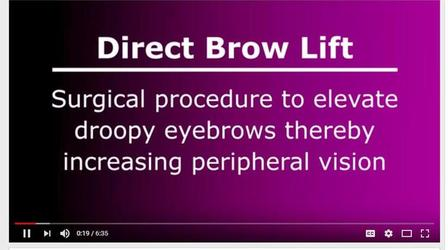 Direct Brow Lift Video