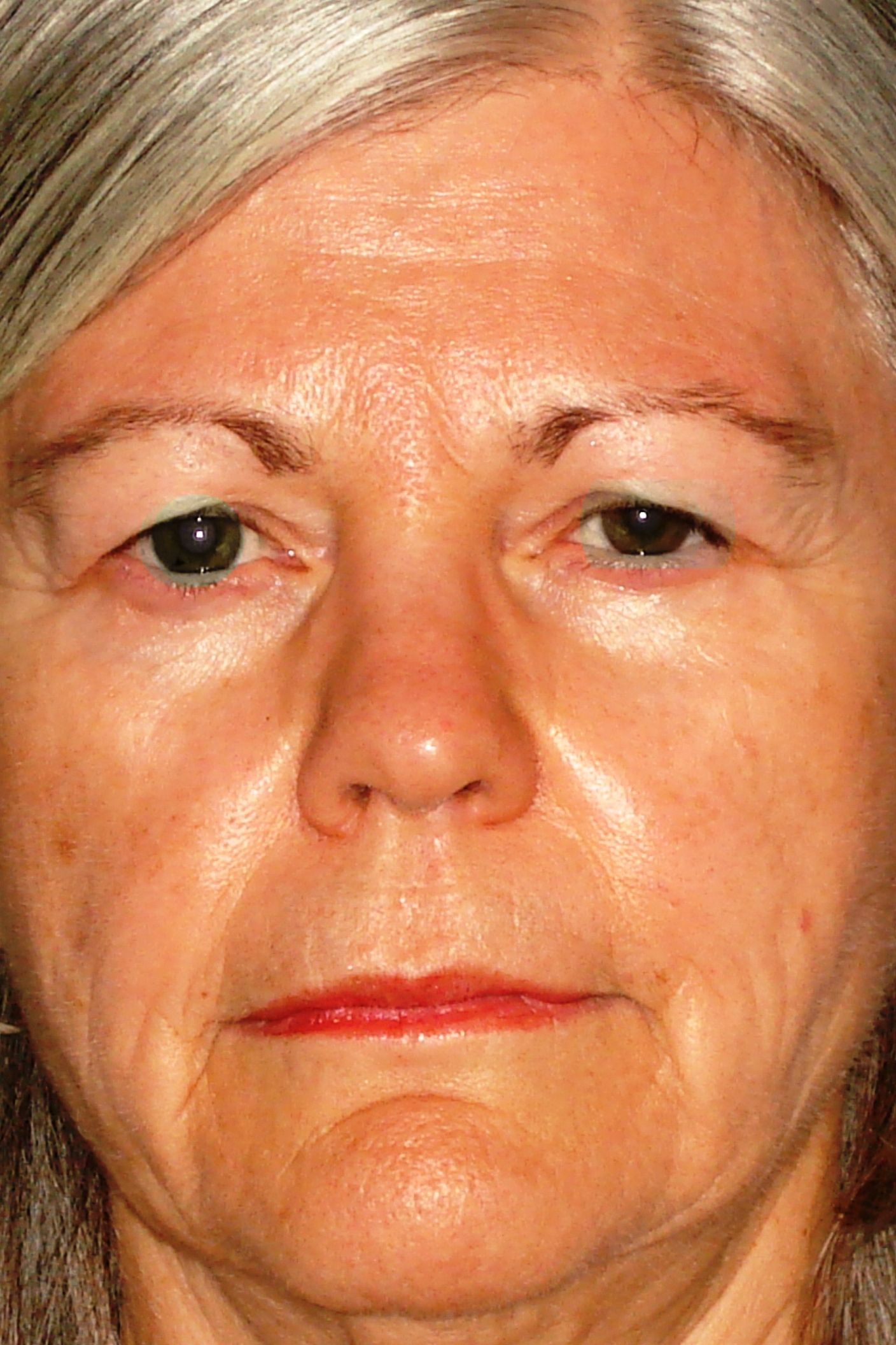 A post-eyelid surgery photo of a female patient