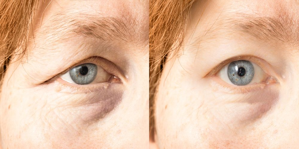 Restore Your Vision and Appearance with Advanced Eyelid Surgery