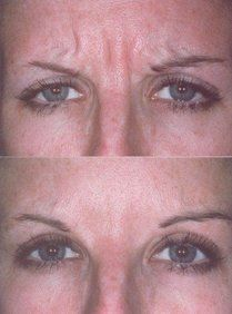 A before-and-after photo of a woman who has undergone BOTOX Cosmetic treatment