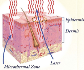 A cross-section of the dermis layer