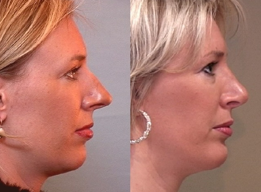 Before and after chin implant photo