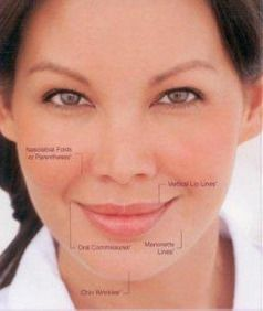 Photo of a woman's face highlighting areas of concern for dermal fillers