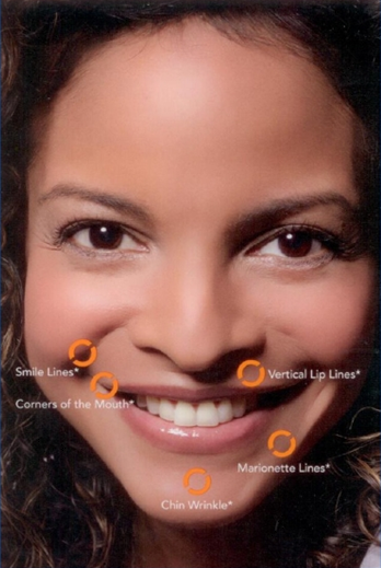 Photo of smiling woman's face with areas treatable by belotero balance highlighted