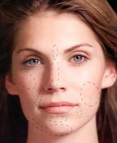 Photo of woman's face with areas treatable by dermal fillers highlighted