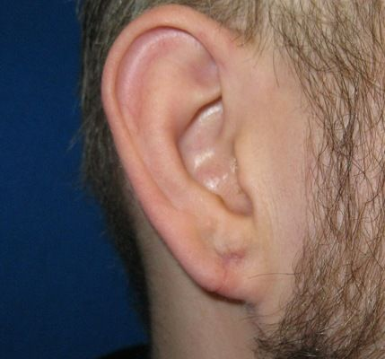 gauge earlobe repair connecticut jandali plastic surgery