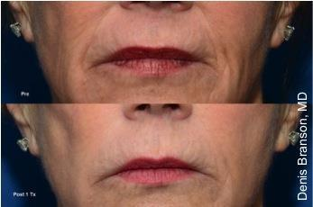 ThermiSmooth Lip Lines Wrinkles Connecticut Jandali Plastic Surgery