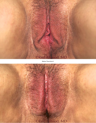 ThermiVa Vaginal Tightening Loose Labia Skin Connecticut Jandali Plastic Surgery