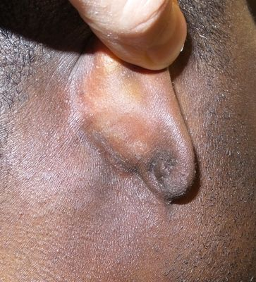 Ear keloid removal connecticut jandali plastic surgery