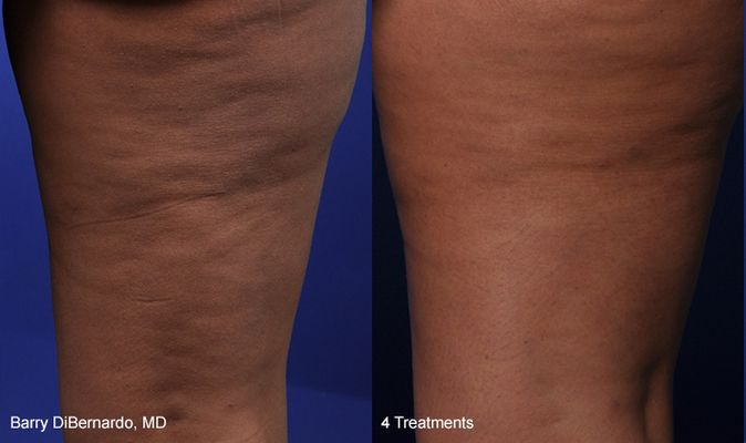Thermi250 Cellulite Treatment Connecticut Jandali Plastic Surgery