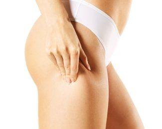 Cellulite Treatment Connecticut