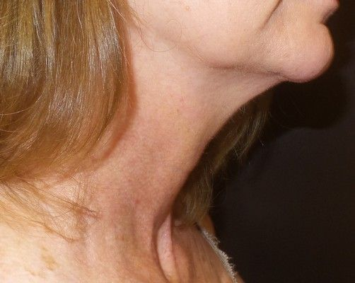 Thermi250 Connecticut neck skin tightening treatment