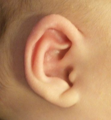 Pointed Baby Ear Correction Connecticut