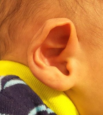 Baby Ears Stick Out Correction Connecticut