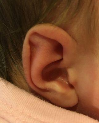 Spock Ear Correction Connecticut