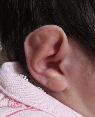 Flat Baby Ear Correction Connecticut