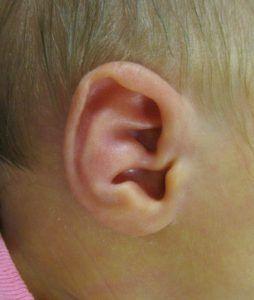 conchal crus ear deformity molding connecticut