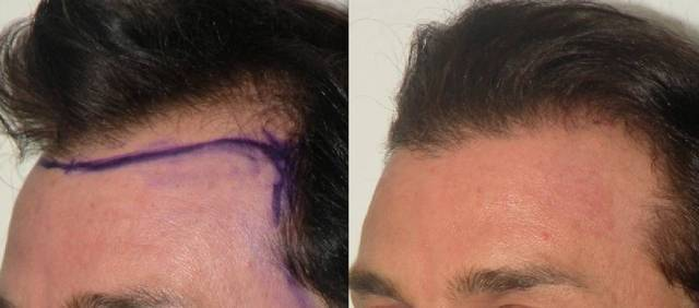 Neograft Hair Transplantation for Men in Connecticut