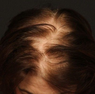 Female Hair Loss Treatment in Connecticut