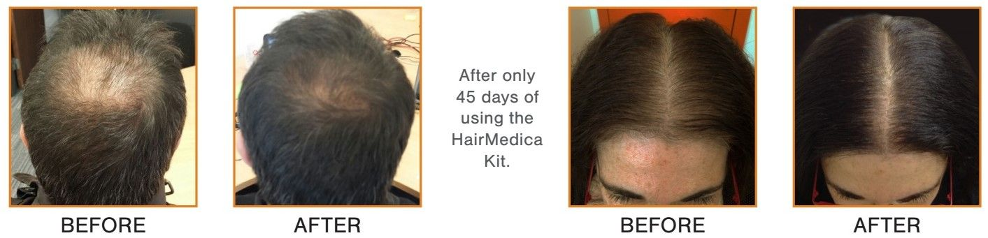 HairMedica Before and After
