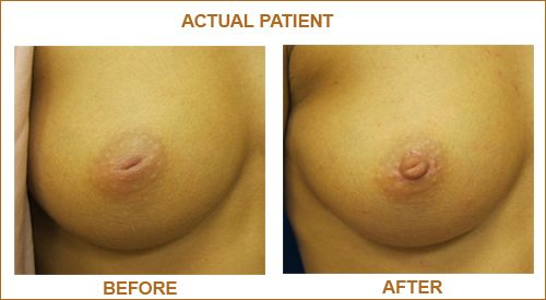 Think, that Causes of inverted breast nipples