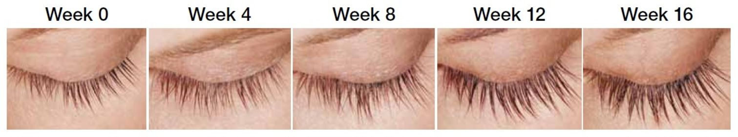 Latisse Eyelash Enhancement Fairfield County Connecticut