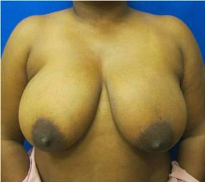 breast reduction bridgeport fairfield connecticut jandali plastic surgery