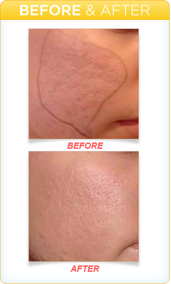 Dermapen Microneedling Acne Scar Treatment - Jandali Plastic Surgery - Connecticut