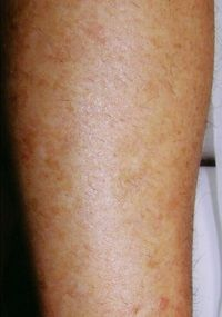 Laser Hair Removal Legs - Jandali Plastic Surgery - Connecticut