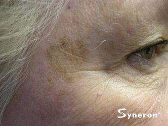IPL brown sun spot laser removal - Jandali Plastic Surgery - Connecticut