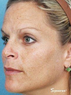 IPL hyperpigmentation laser removal - Jandali Plastic Surgery - Connecticut