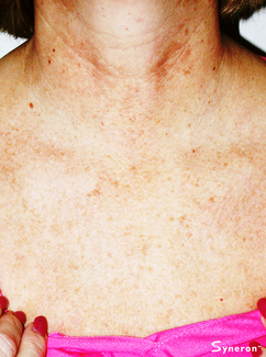 IPL chest and neck sun damage laser removal - Jandali Plastic Surgery - Connecticut