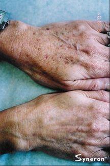 IPL hand rejuventation for brown spots - Jandali Plastic Surgery - Connecticut