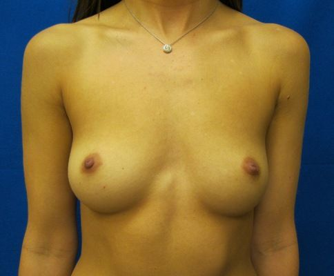 high profile silicone breast augmentation bridgeport fairfield connecticut jandali plastic surgery