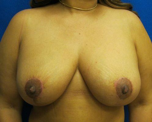 Breast Lift Scars Westport Fairfield Bridgeport Connecticut Jandali Plastic Surgery