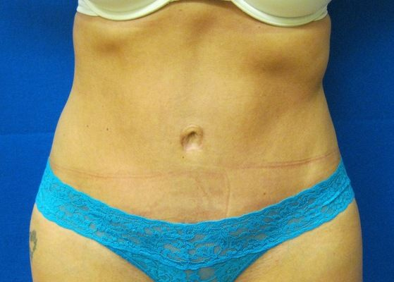 tummy tuck scars Dr. Shareef Jandali Westport Fairfield Bridgeport New Haven Connecticut