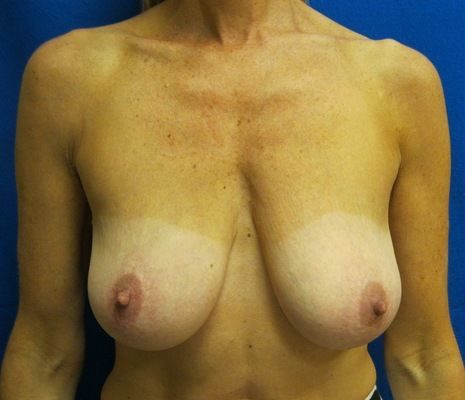 Breast Lift with Implants Bridgeport Fairfield Connecticut Jandali Plastic Surgery