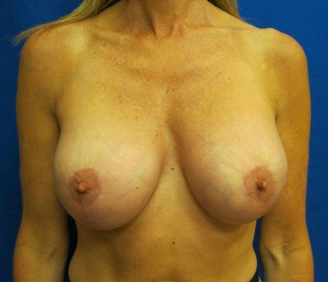 Breast Lift with Implants Westport Fairfield Connecticut Jandali Plastic Surgery