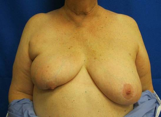 without oncoplastic breast surgery jandali plastic surgery connecticut