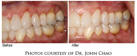 Before and After Photo of Pinhole Surgery