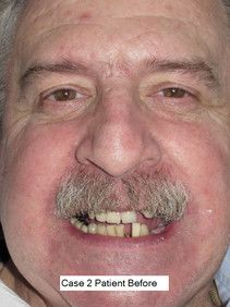 Implant patient with missing teeth before implants
