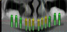 CAT Scan showing planning for dental implants at Tischler & Patch Dental