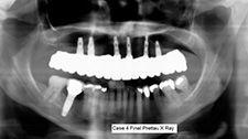 Panoramic x ray of Prettau Bridge on dental implants