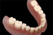 Lower dentures are difficult to wear